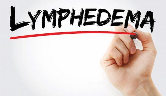 Lymphedema Treatment Albuquerque