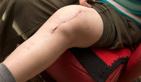 post-operative recovery therapy post-injury recovery therapy Albuquerque