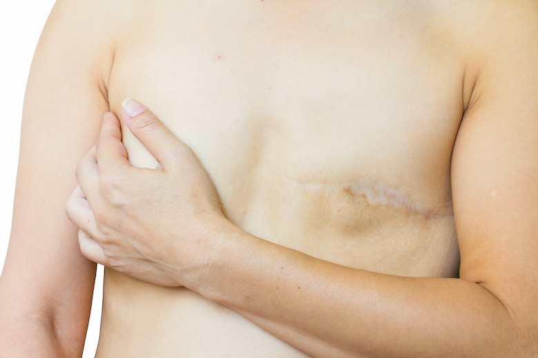 Breast Surgery Recovery Therapy Post-Mastectomy Healing