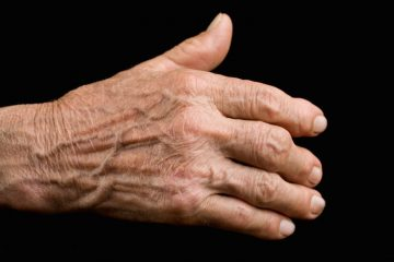 Pulsed Electromagnetic Field Therapy (PEMF Therapy) for arthritis Albuquerque