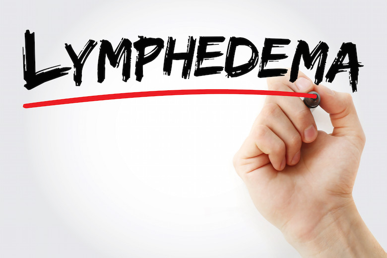 Lymphedema Treatment Albuquerque