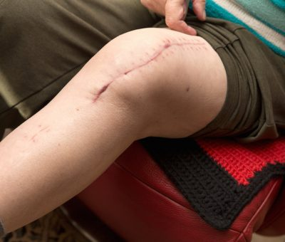Surgical Recovery Therapy - Post-Operative Recovery Therapy Albuquerque Knee Replacement