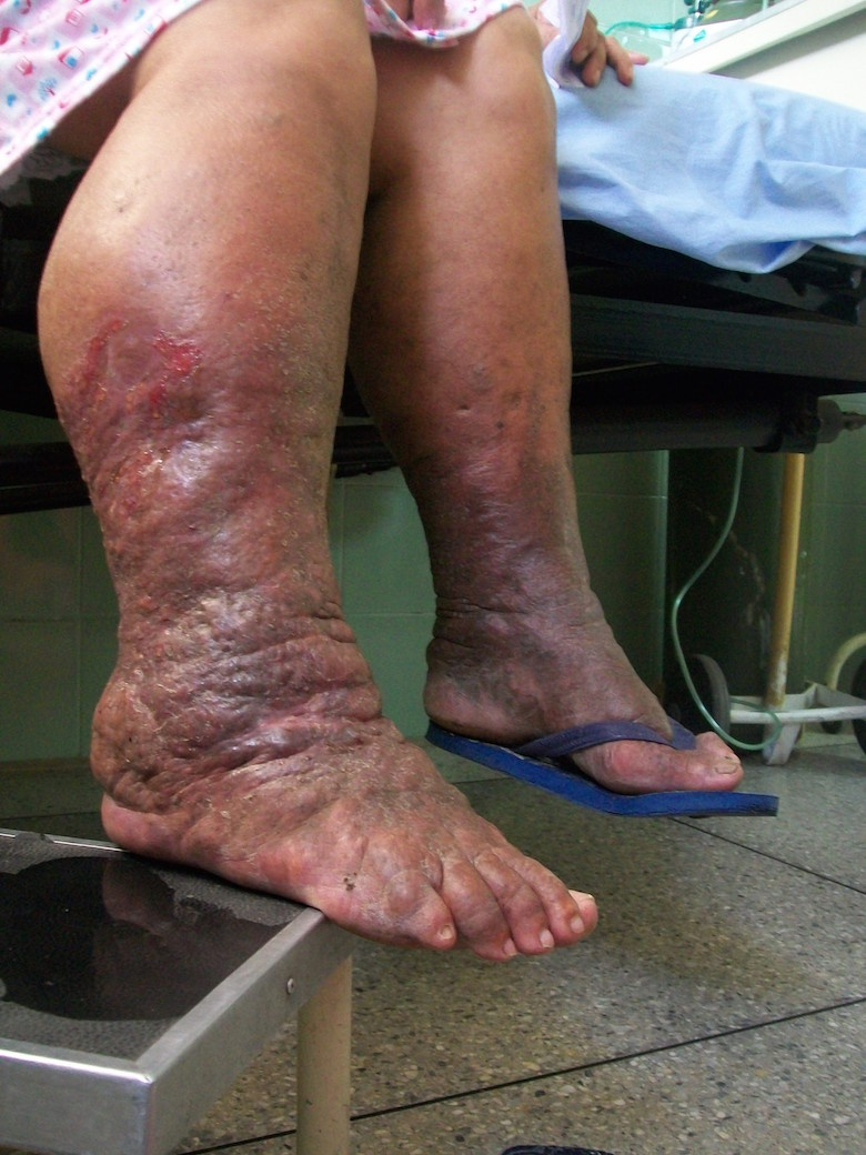 Late Stage Lymphedema Symptoms