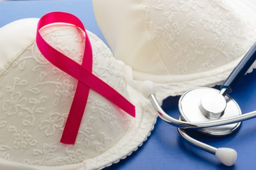 Breast Cancer Related Lymphedema Frequently Asked Questions