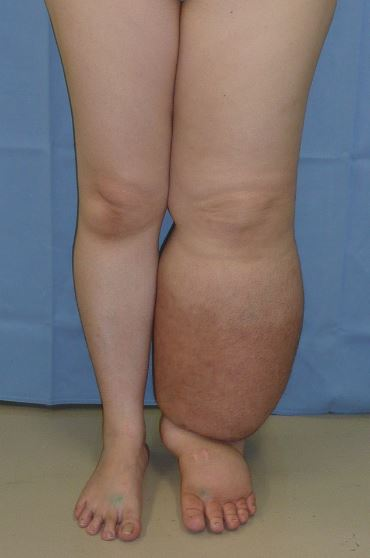 difference between edema and lymphedema