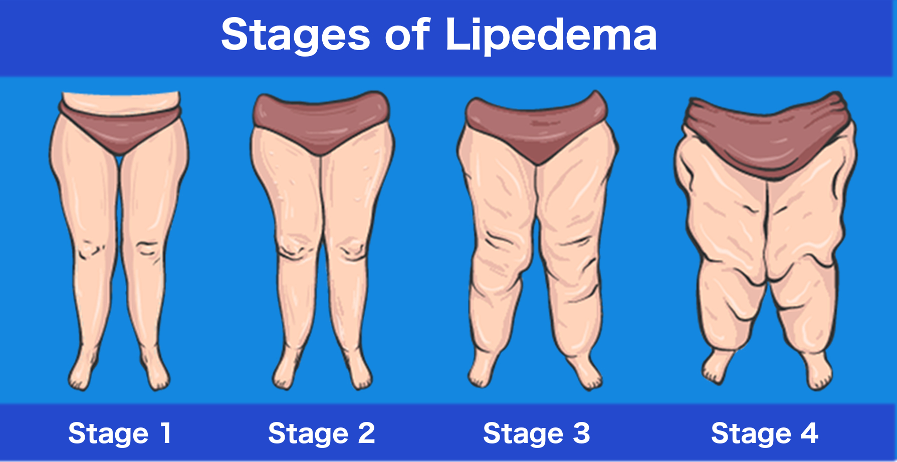 stages of lipedema - lipedema management - lymphatic drainage