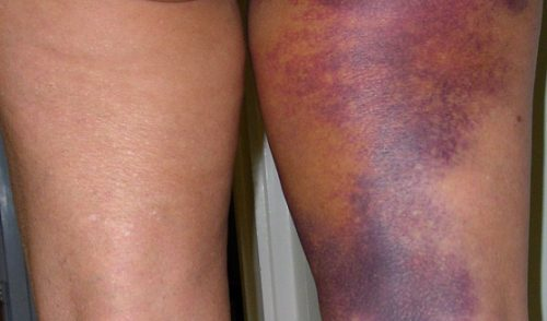 Surgical Recovery Therapy - post-operative bruising and swelling relief after surgery Albuquerque