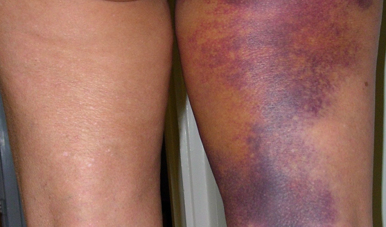 post-operative bruising and swelling after surgery