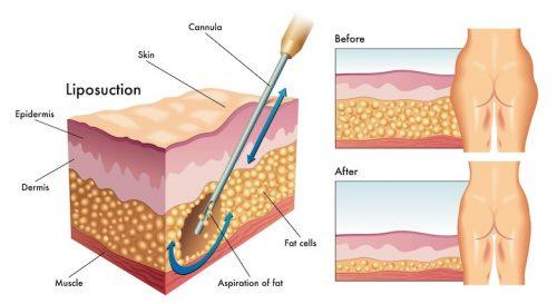 liposuction for lipedema