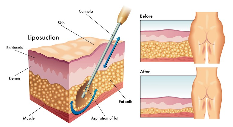 liposuction diagram cannula fat layers