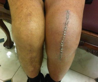 Knee replacement - both legs. Leg on the left shows signs of permanent fibrosis due to prolonged swelling.