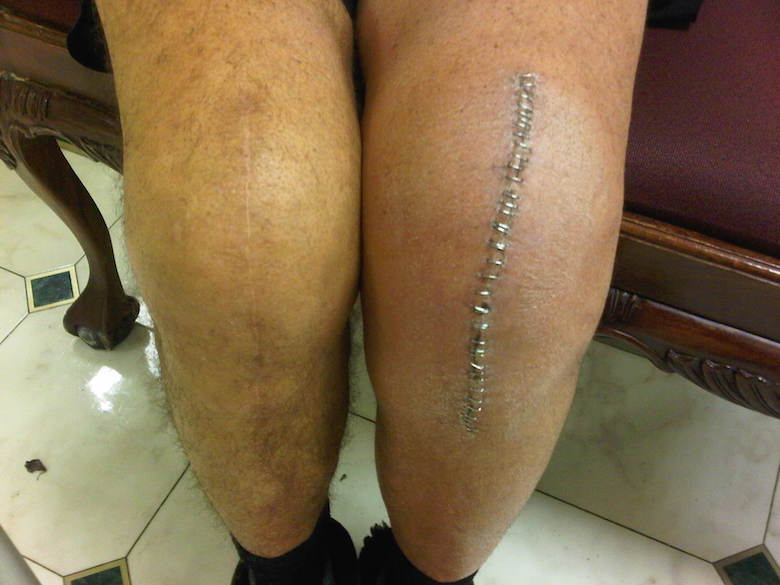 knee replacement swelling