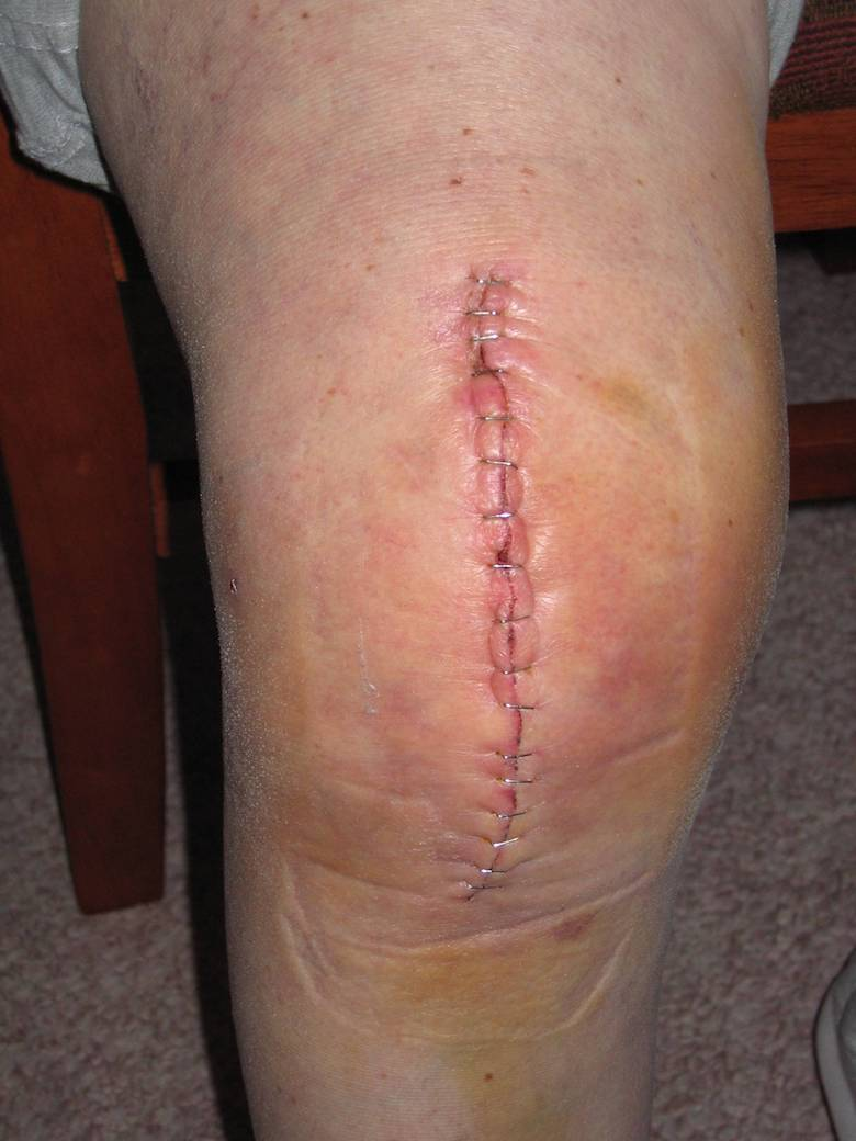 knee replacement recovery therapy swelling pain