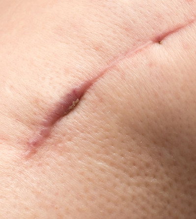 mastectomy scar healing therapy scar remodeling