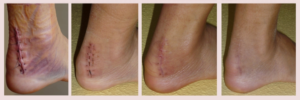 Surgical Recovery Therapy - ankle surgery post-operative recovery therapy Albuquerque scar work manual lymphatic drainage