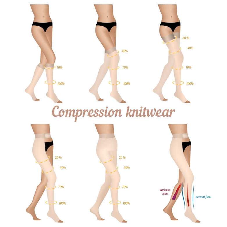 Choose the right compression stockings