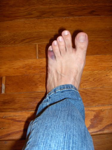 swelling from stubbed toe