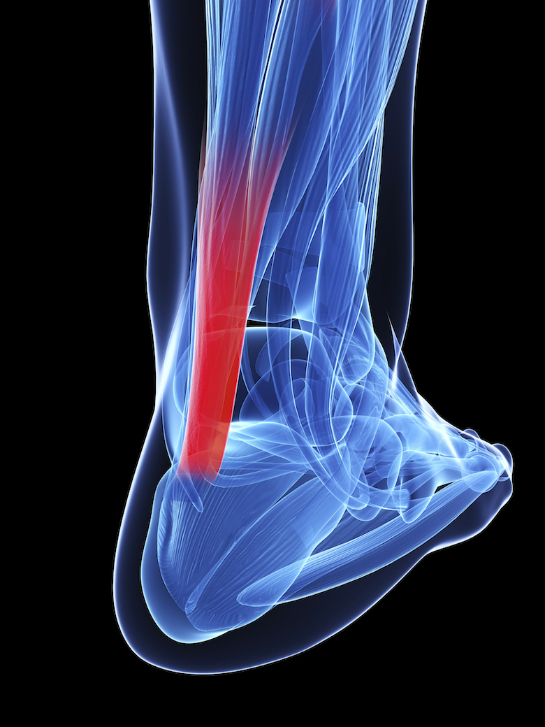 PEMF Therapy Benefits - Achilles Tendonitis - PEMF for tendonitis