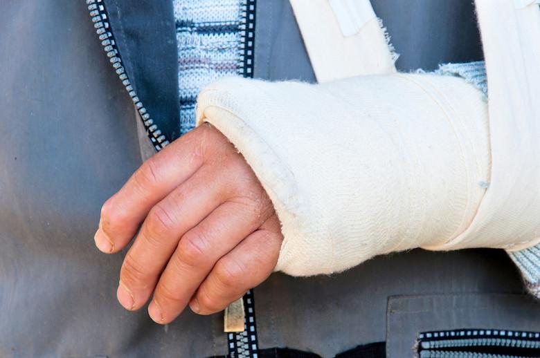 PEMF Therapy Benefits PEMF heal broken bone