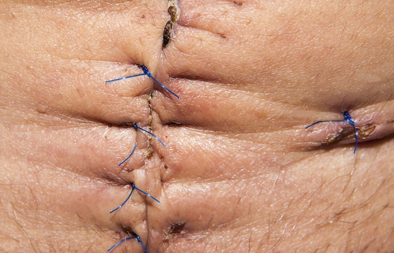 scar from abdominal surgery can lead to deep adhesions that can cause pain and twist vital organs - scars can cause dangerous adhesions - heal scars Albuquerque
