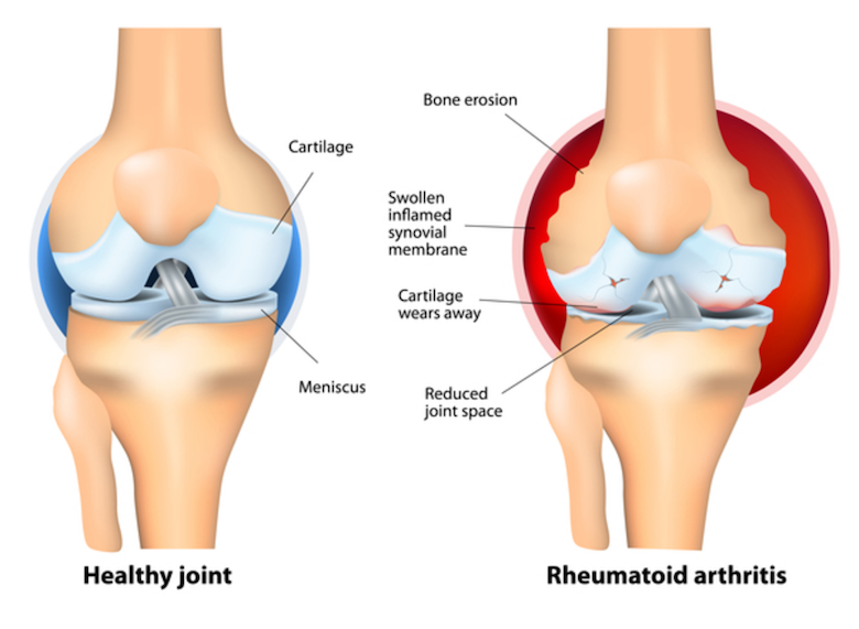 PEMF Therapy for arthritis in the knee - PEMF for rheumatoid arthritis - PEMF therapy benefits
