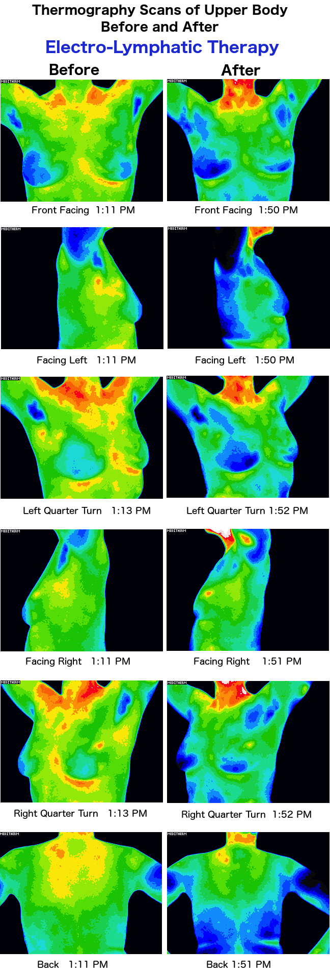 Thermography Scans of the upper body before and after Electro-Lymphatic Therapy