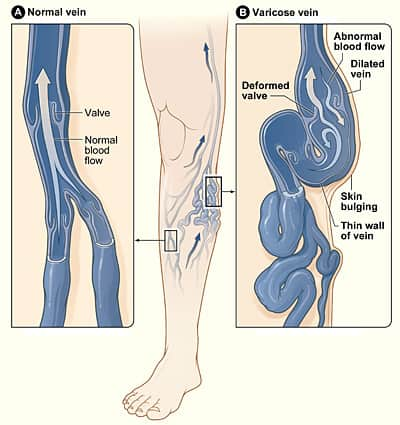 varicose vein formation due to faulty veins - treatment for varicose veins albuquerque