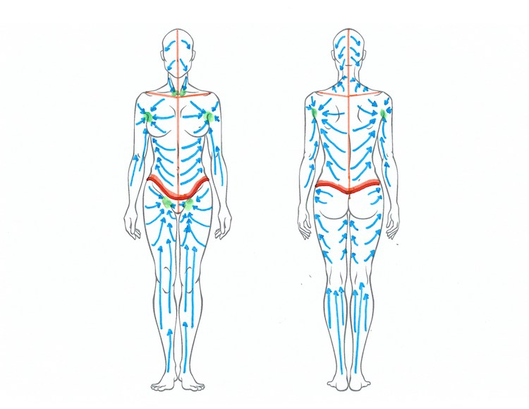 Lymphatic Drainage Patterns after Tummy Tuck and Body Lift - Albuquerque - What to Do When You Can't Get a Lymphatic Massage After Plastic Surgery