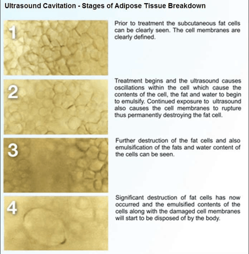 How ultrasound cavitation works - Albuquerque - after liposuction