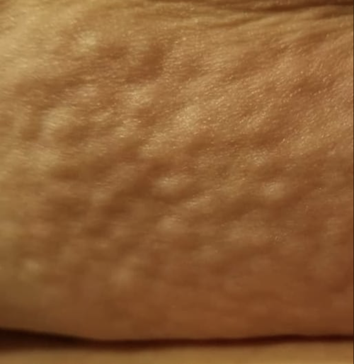 Smaller Lipedema nodules on knees